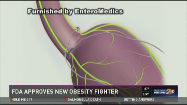FDA Approve Pacemaker-Like Weight Loss Device